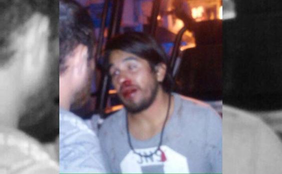 Se investiga si policías participaron en agresión a fotógrafo