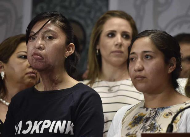 Mujeres agredidas con ácido lanzan grito de auxilio