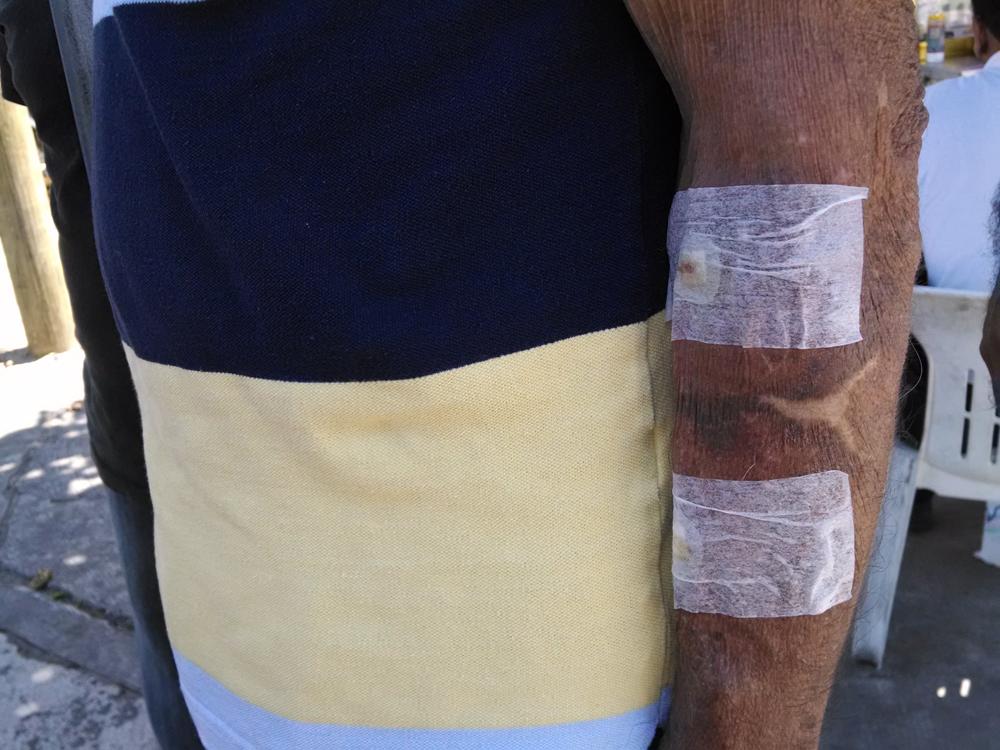 Hemodiálisis, más caro que un trasplante de riñón: Benítez
