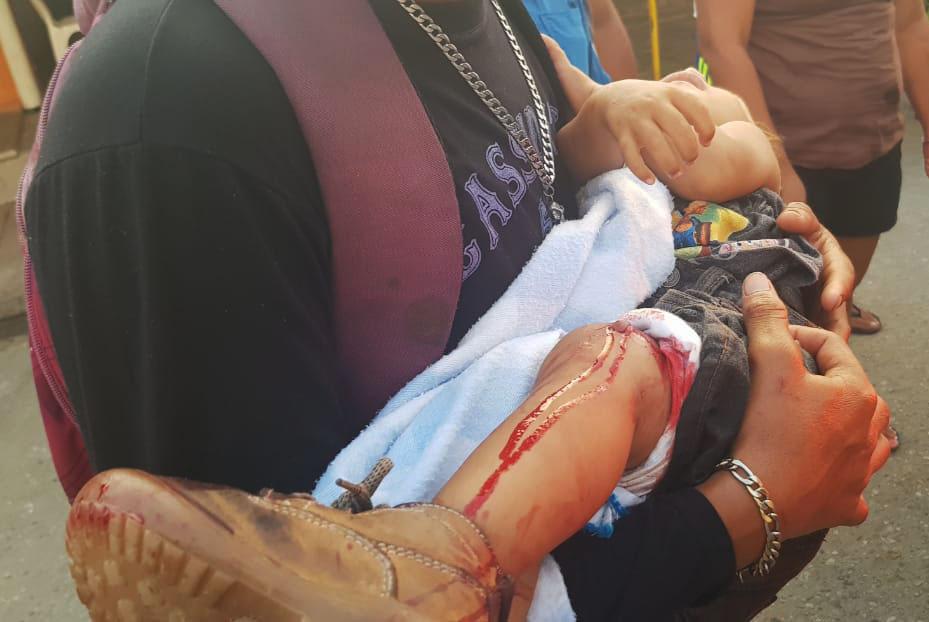 Bebé baleado en Coatzacoalcos sigue delicado