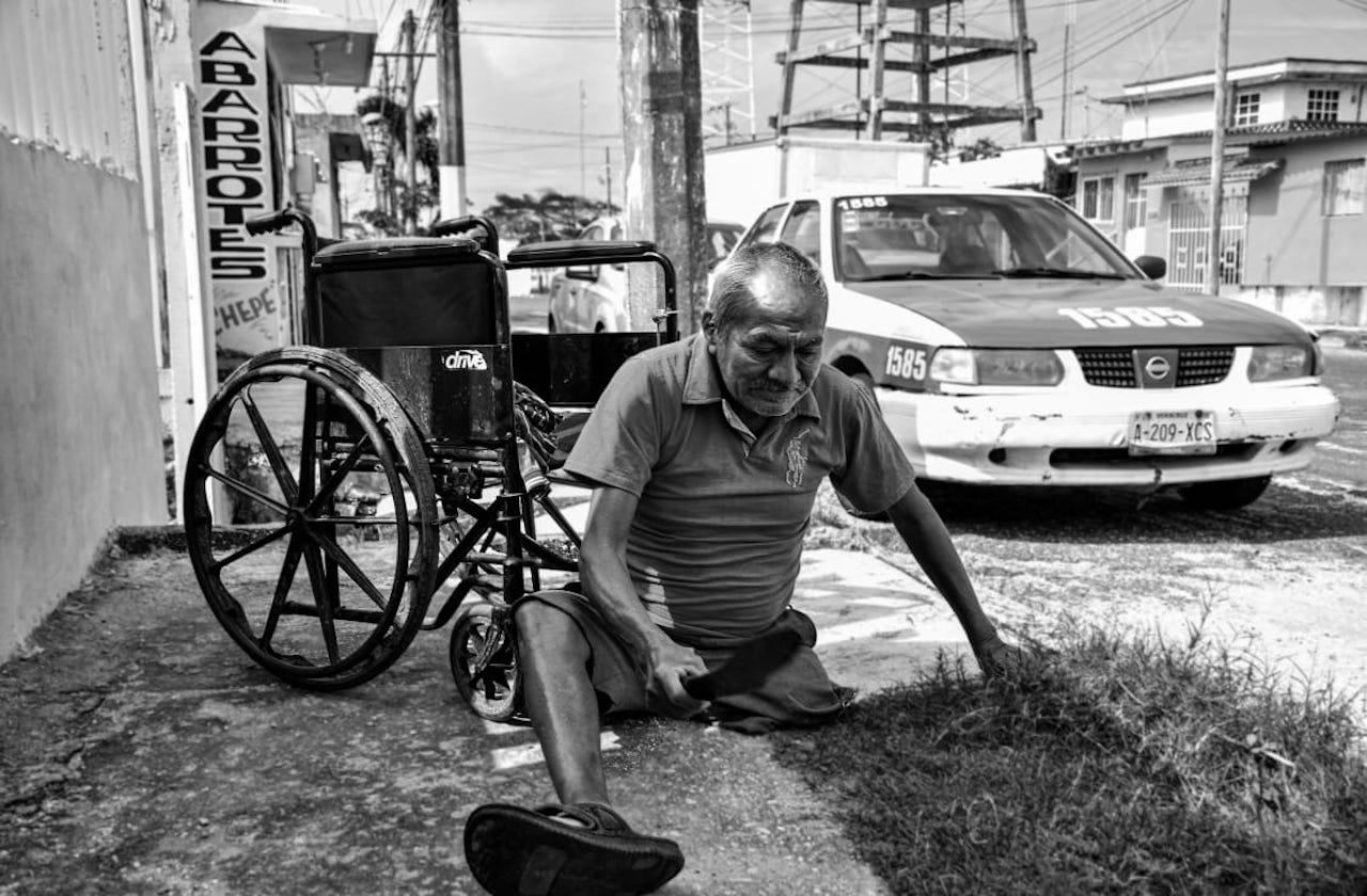 Con 68 años y sin una pierna, Jorge limpia terrenos con un machete