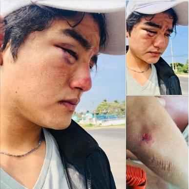 Estudiante acusa agresión sexual de taxista en Coatza