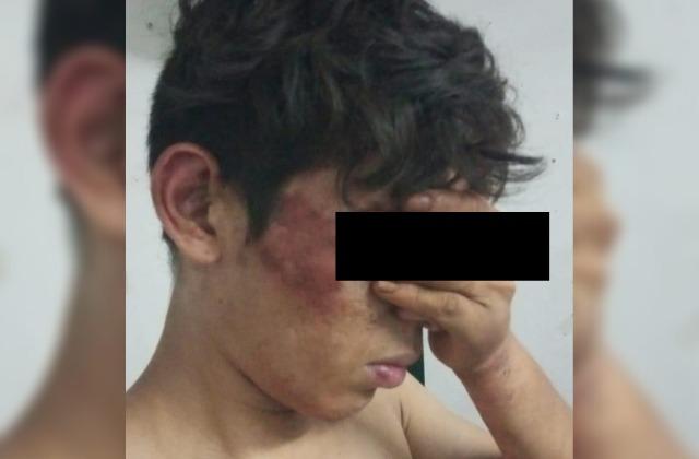 Denuncian tortura de parte de la Fuerza Civil, contra un menor