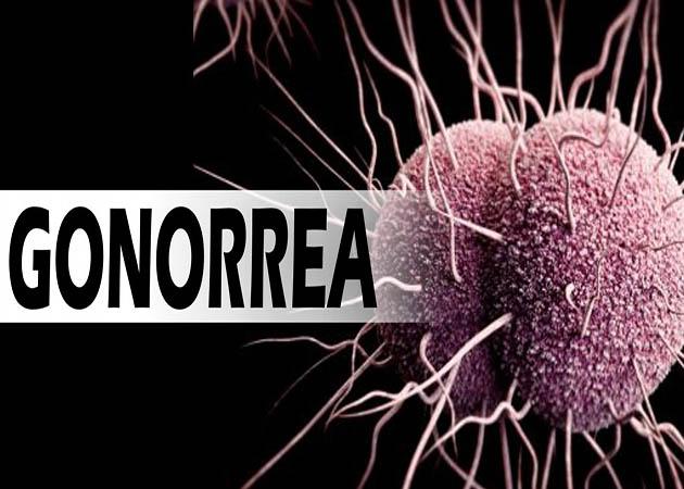 Veracruz ocupa segundo lugar nacional en casos de gonorrea