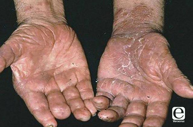 Veracruz sin casos de lepra; 18 estados sufren brote