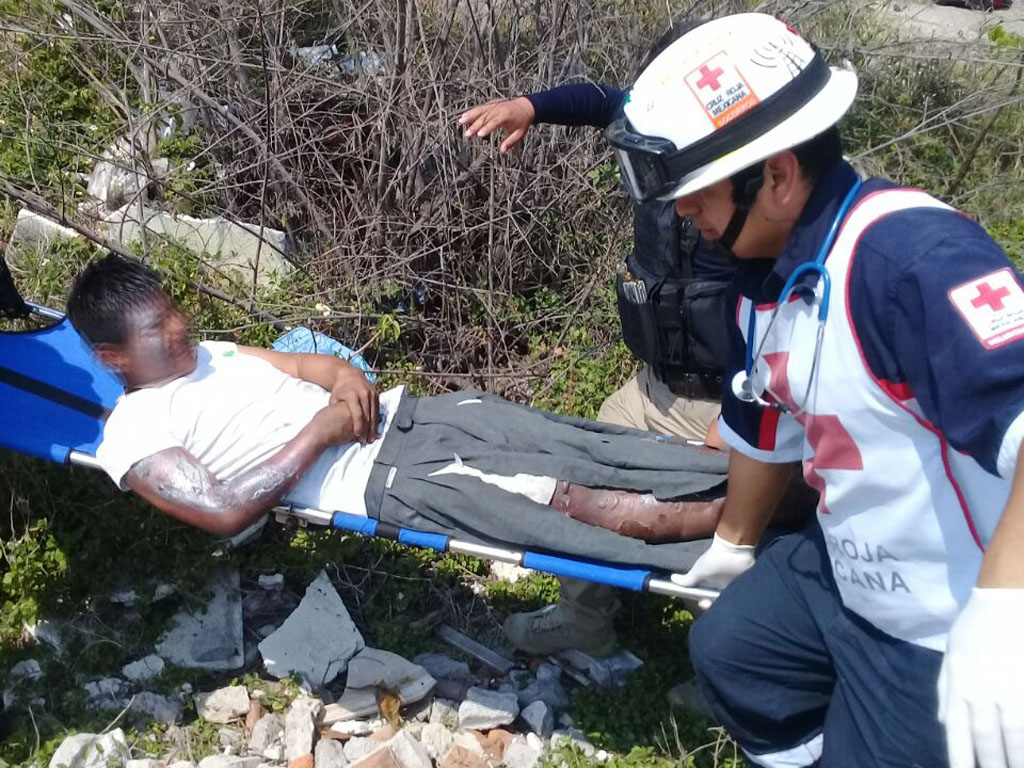 Migrante sufre quemaduras en 35% de su cuerpo tras ataque