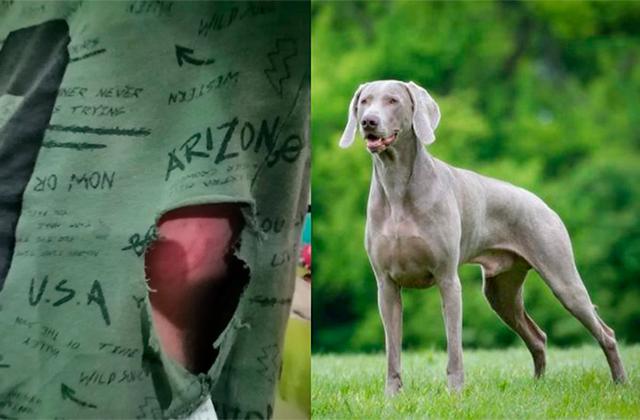 Nuevo ataque, ahora perro muerde a niño de 10 años en Boca