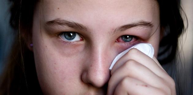 ¡Cuidado! 5 enfermedades sexuales que afectan tus ojos