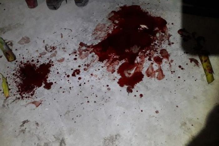 Papantla: le cortaron el pene por no pagar en la cantina