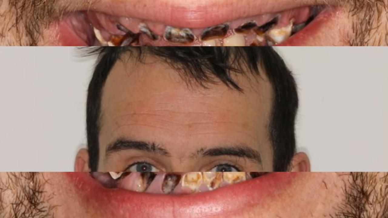 El refresco y tus dientes... ¡Sepáralos!