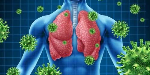 Infección de vías respiratorias, un mal habitual que puede matar: experto