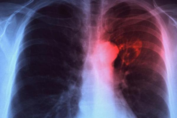 Veracruz, primer lugar nacional en casos de tuberculosis