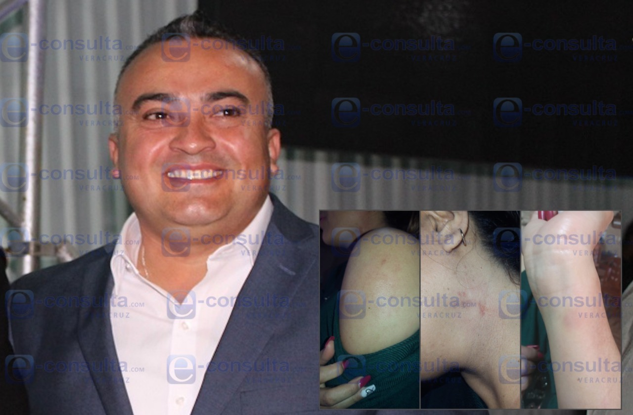 Van contra alcalde de Tlacotepec de Mejía por golpear a una mujer