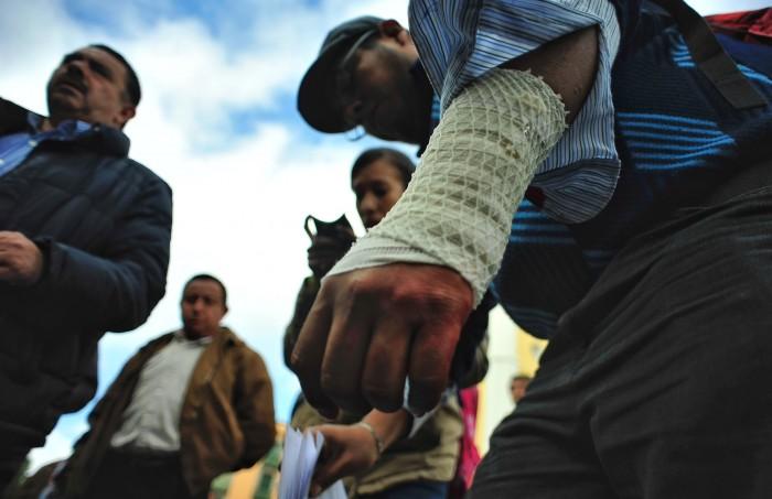 Ex trabajador del gobierno de Veracruz se corta la muñeca por despido