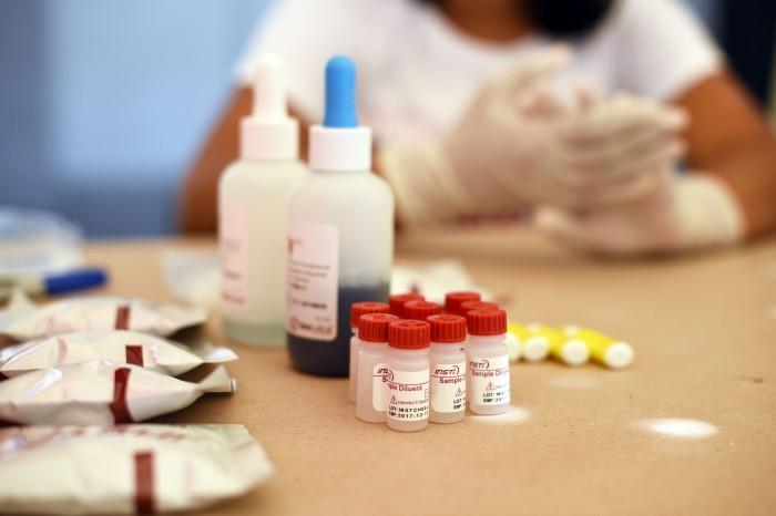 38% de nuevos casos con VIH/SIDA se detectan en su etapa final