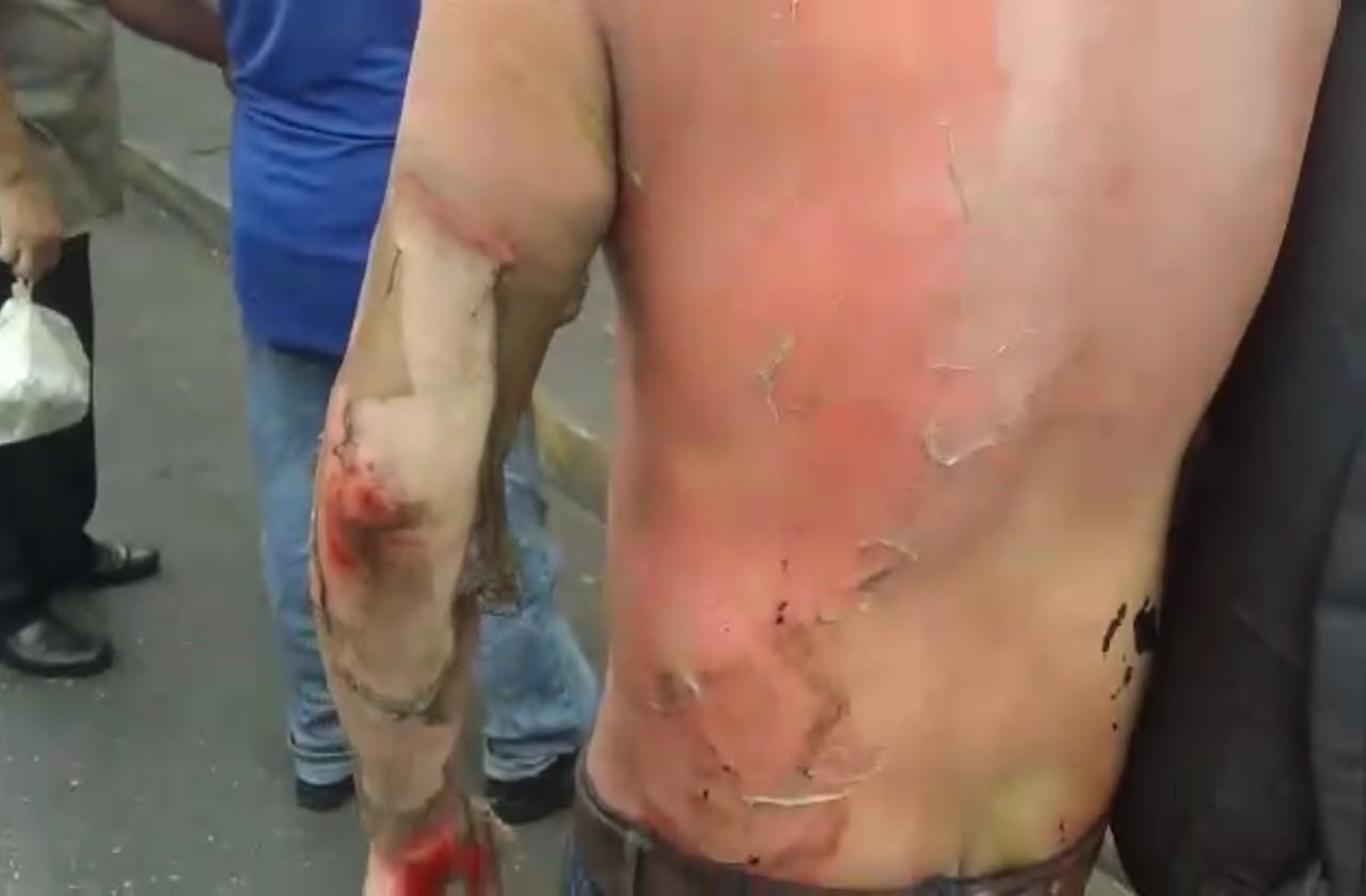 Tras riña, queman a sujeto en Córdoba
