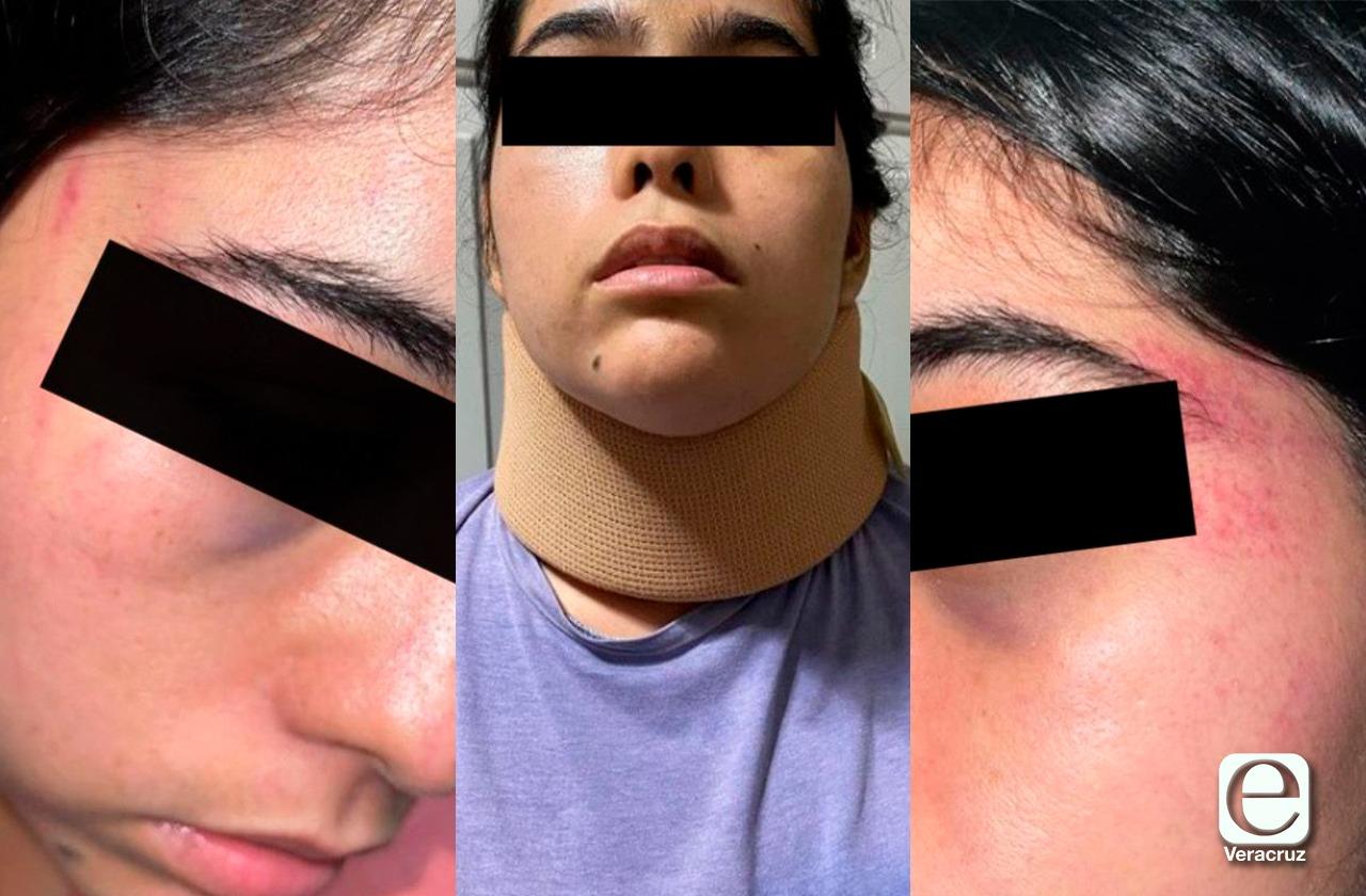 Quiso cortarme el cuello: Odalis, otro intento de feminicidio en Veracruz